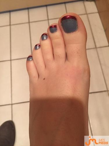 Photos des pieds de Dimetdelf, de retour