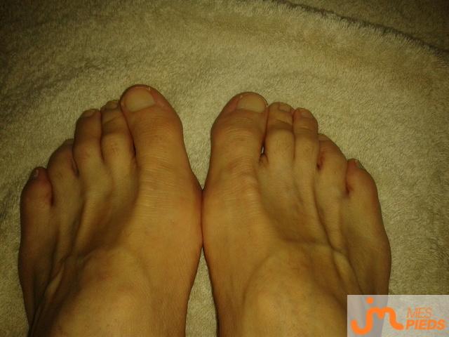 Photo des pieds de Mespiedspointcom
