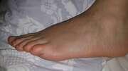 Photos des pieds de Kiol, un pied