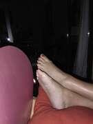 Photos des pieds de Soleil 174, Pieds